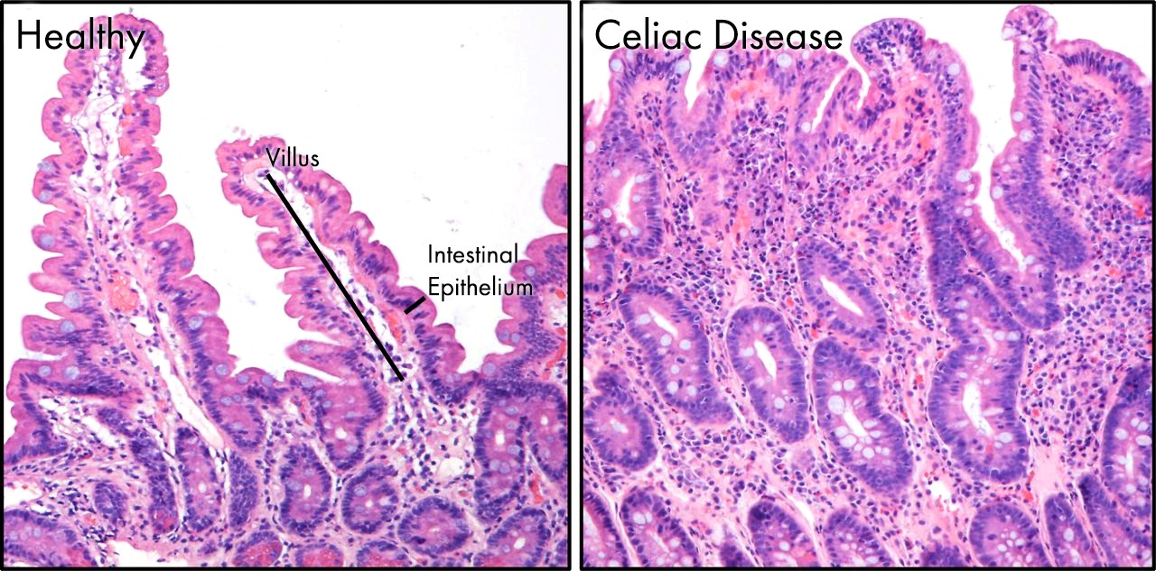 Fig 1: Intestinal changes of Celiac disease.