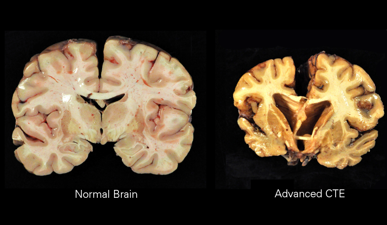 Brain dissections of normal brain (Left) and a brain with stage IV chronic traumatic encephalopathy(Right).