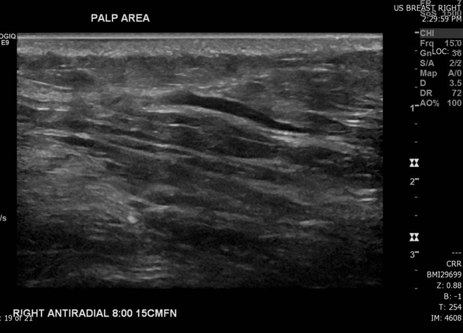 Ultrasound: Gray scale images of the patient's area of palpable concern in the right breast demonstrates a superficial vein with an area of intraluminal thrombus.