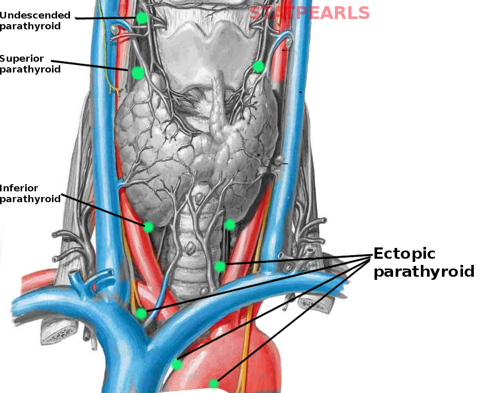 Ectopic parathyroid glands