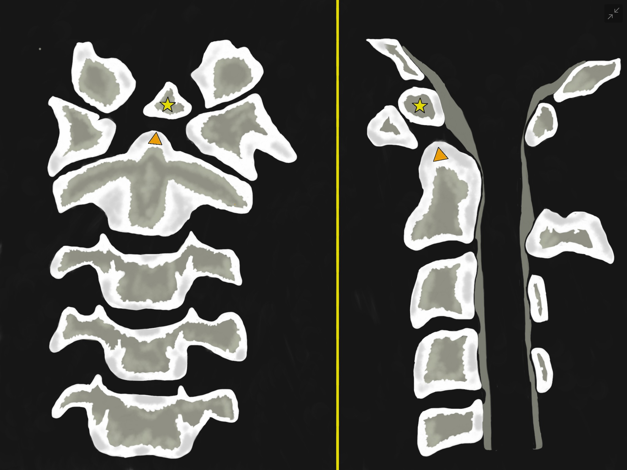 Figure 1 - Illustrations of Os Odontoideum in an anterior-posterior (left-sided image) and lateral (Right-sided image) views. They show an oval or round-shaped ossicle with smooth circumferential cortical margins (yellow star) representing a hypoplastic odontoid process (Orange triangle) that has no continuity with the C2 vertebral body. It often attached to the anterior arch of C1 through an intact transverse ligament.