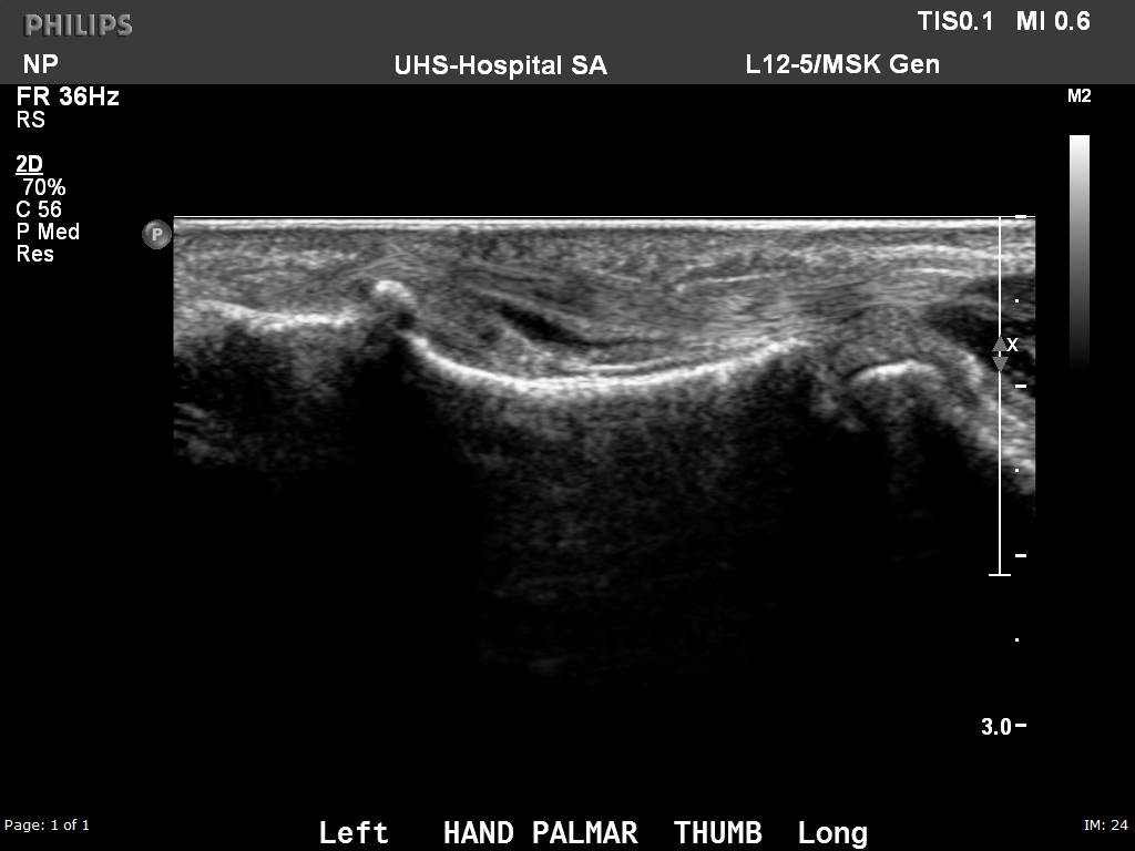 Ultrasound image of the thumb in a patient with a history of Rheumatoid Arthritis shows an abnormal amount of fluid within the flexor pollicus longus tendon sheath, consistent with an inflammatory tenosynovitis.