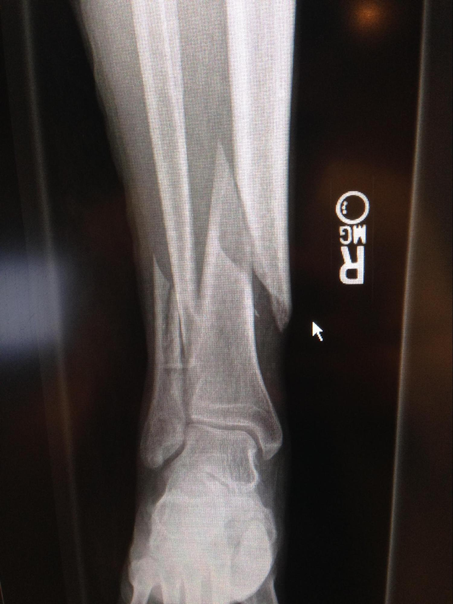 Tibial Fracture