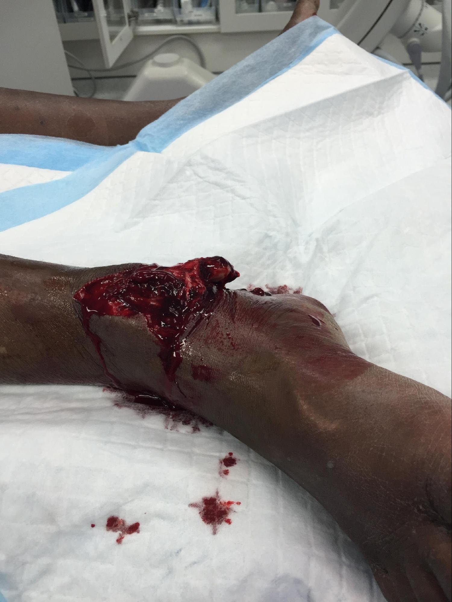 Open Fracture Management