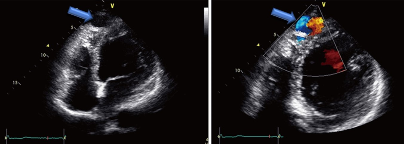 cardiac ultrasound of a coronary cameral fistula draining into the left ventricle in an adult