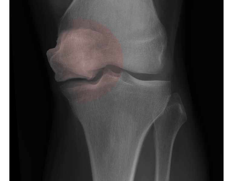 Osteonecrosis of knee