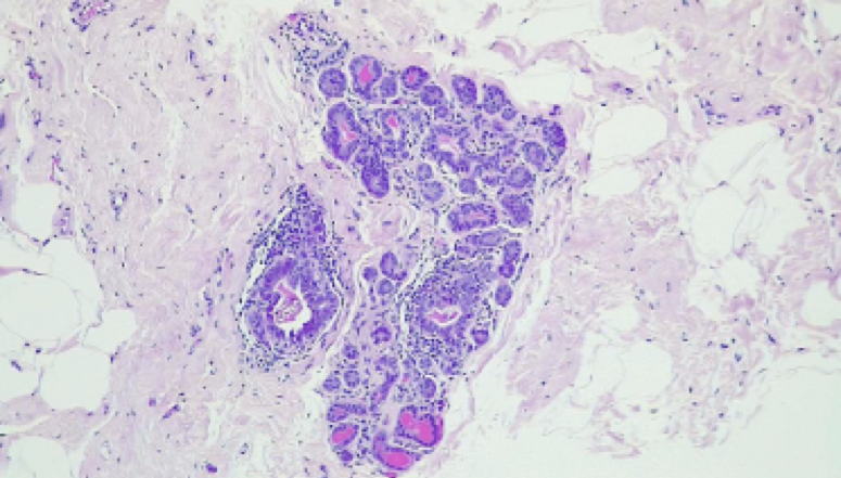 Histologic examination of the specimen submitted confirms female breast tissue with adenosis, epithelial hyperplasia, duct dilatation, chronic inflammation and dystrophic calcifications.  There is no evidence of in-situ or invasive malignancy on the material examined.