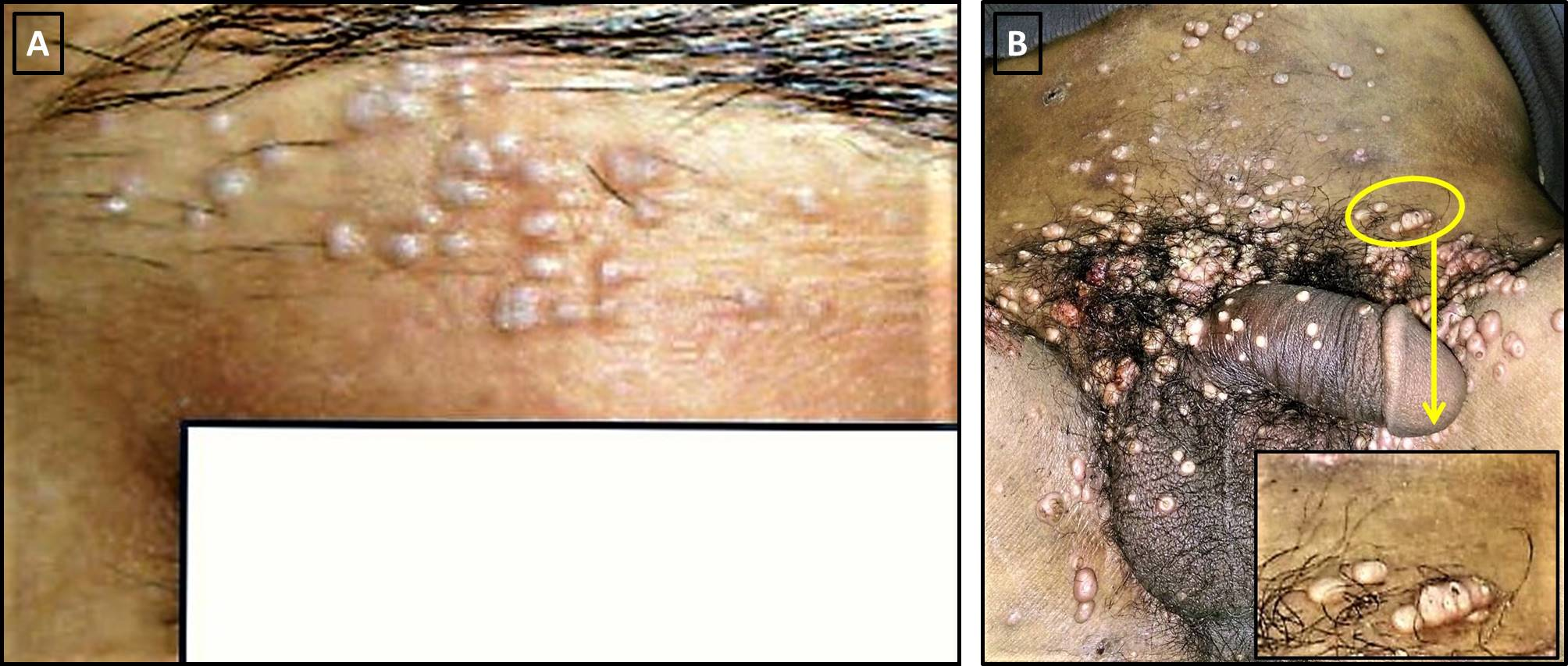 Figure 2 Pseudokoebnerization: (A) Of flat warts in the threading area of a young lady; and (B) Ofmolluscum contagiosum (MC) lesions in an immunosuppressed patient. Appreciate the florid lesions of genital MC and evidence of linear clusters at multiple places. One area (yellow circle) has been magnified in the inset for better appreciation. visible as clustered papules (black circle). In these cases, micro-inoculation or seeding of the viral particles is responsible for this kind of Koebner phenomenon.