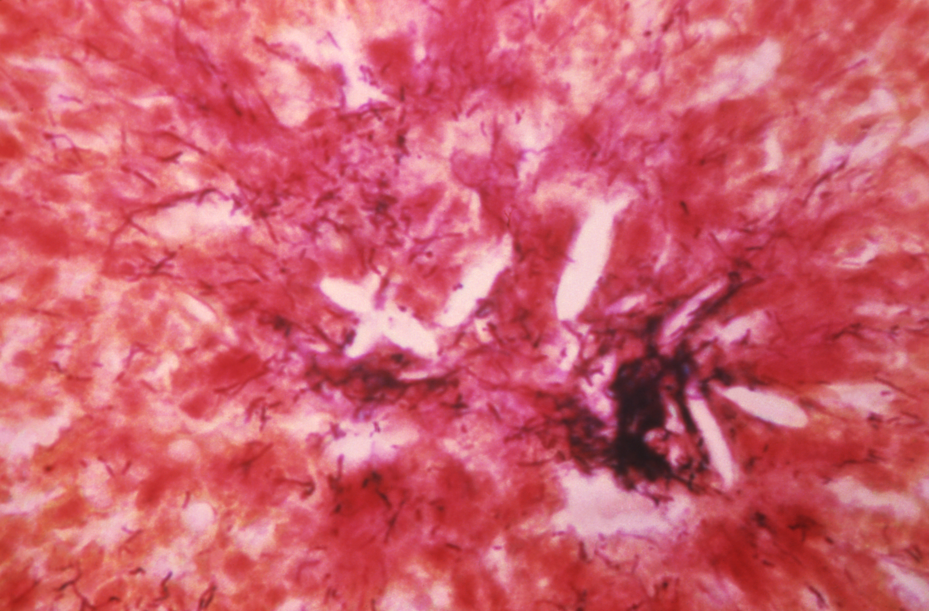 Under a magnification of 200X, this photomicrograph of a Gram-stained brain tissue specimen, revealed the presence of a chronic inflammatory sulfur granule in a case of actinomycosis, caused by a Gram-positive, fungus-like aerobic bacterium of the genus, Actinomyces.