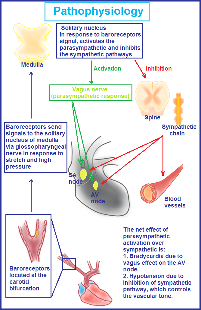 Pathophysiology of carotid hypersensitivity syndrome (CHS).