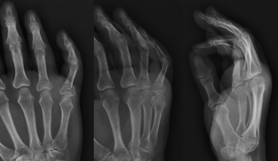 AP, lateral, and oblique xray images of a right small finger proximal phalanx fracture
