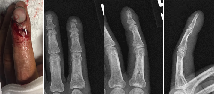 Distal phalanx fracture of the left index finger: gross image with AP, oblique, and lateral xrays.