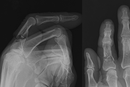 Proximal phalanx fracture of right index finger - lateral and AP radiographs