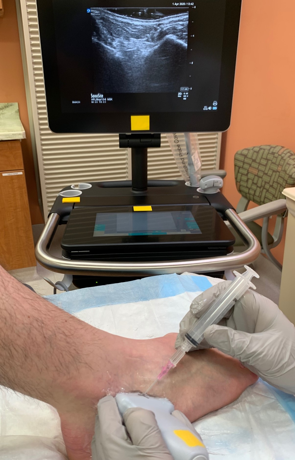 Demonstration of positioning and location for access to subtalar ankle joint with ultrasound guidance.  Ultrasound monitor demonstrates desired landmarks of Talus (left) and Calcaneus (right).