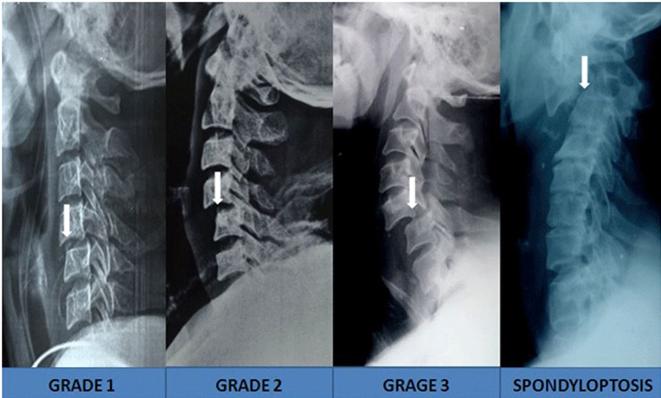 Meyerding grades of spinal subluxation