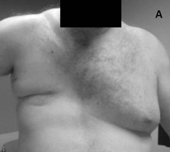 Poland Syndrome with absence of pectoralis major muscle.