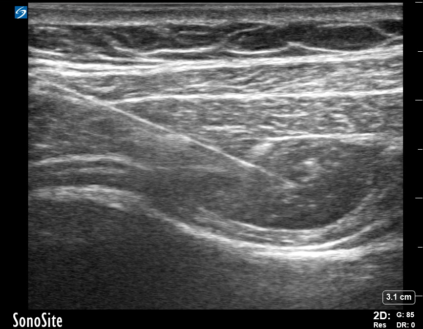 Image 5. Transversus abdominis plane (TAP) block ultrasound image showing the needle hydrodissecting the TAP compartment with local anesthetic between the internal oblique muscle and transversus abdominis muscle.