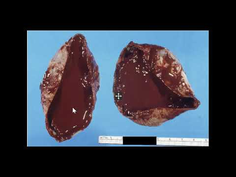 "Example of ovarian endometrioma or ""chocolate cyst."""
