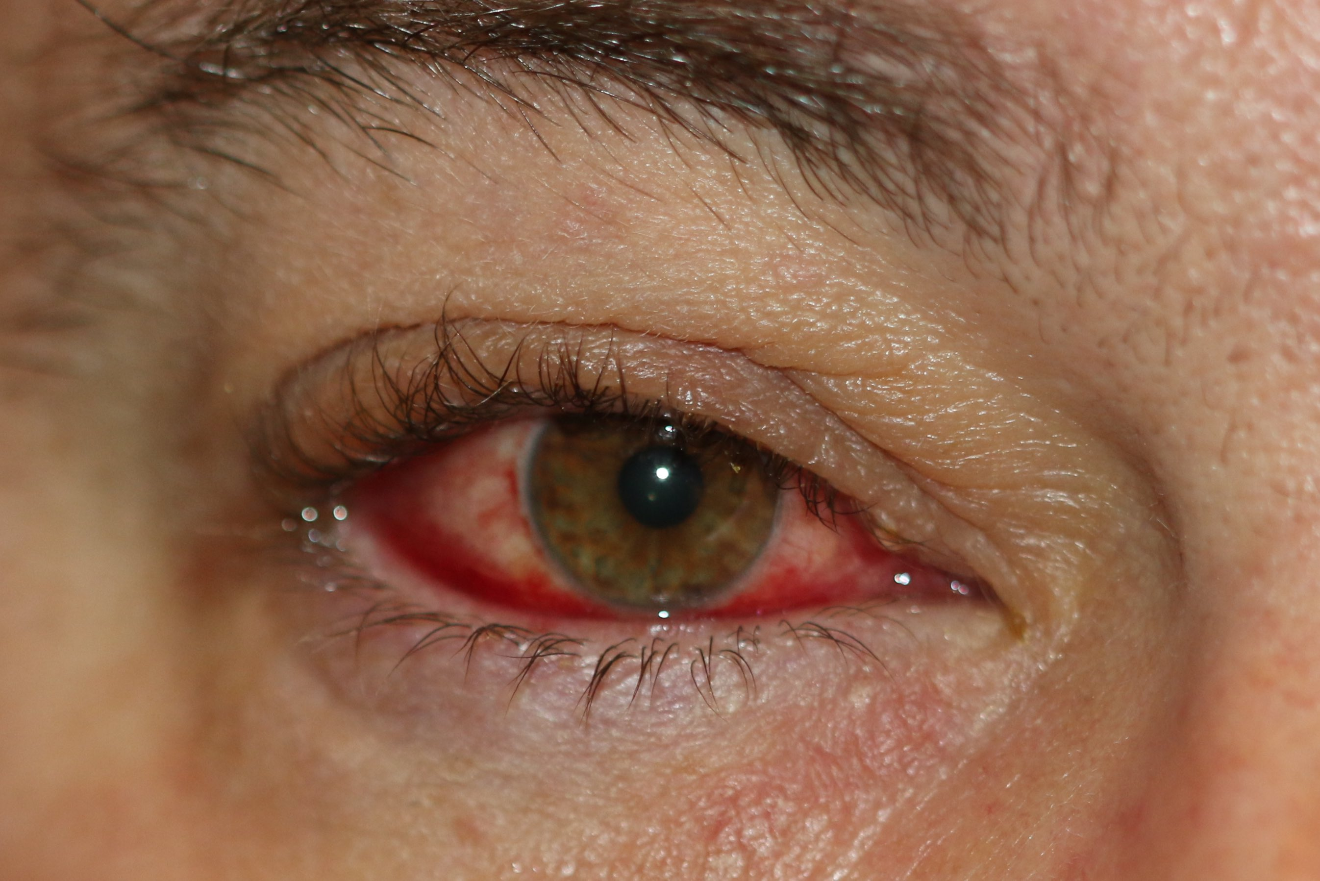 Blepharoconjunctivitis with inflammation of the eyelid margin and conjunctiva