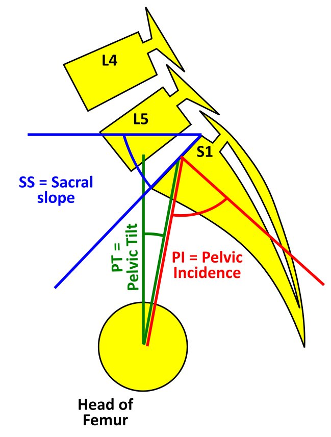 Spino pelvic parameters showing Pelvic tilt (PT), Sacral slope (SS) and Pelvic incidence (PI). Pelvic incidence (PI) = Pelvic tilt (PT) + Sacral slope (SS)