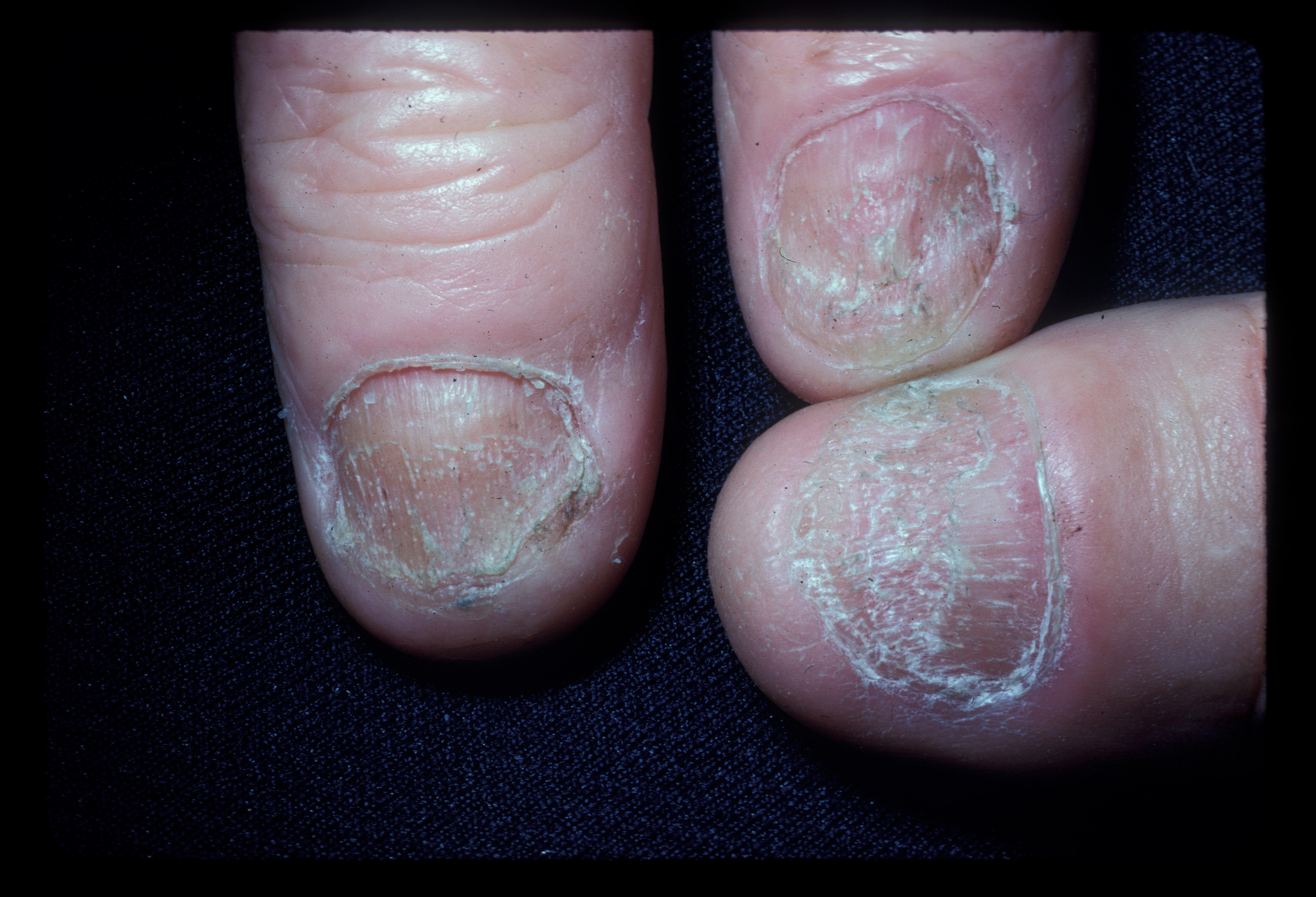 Alopecia areata.  Dystrophic nails.