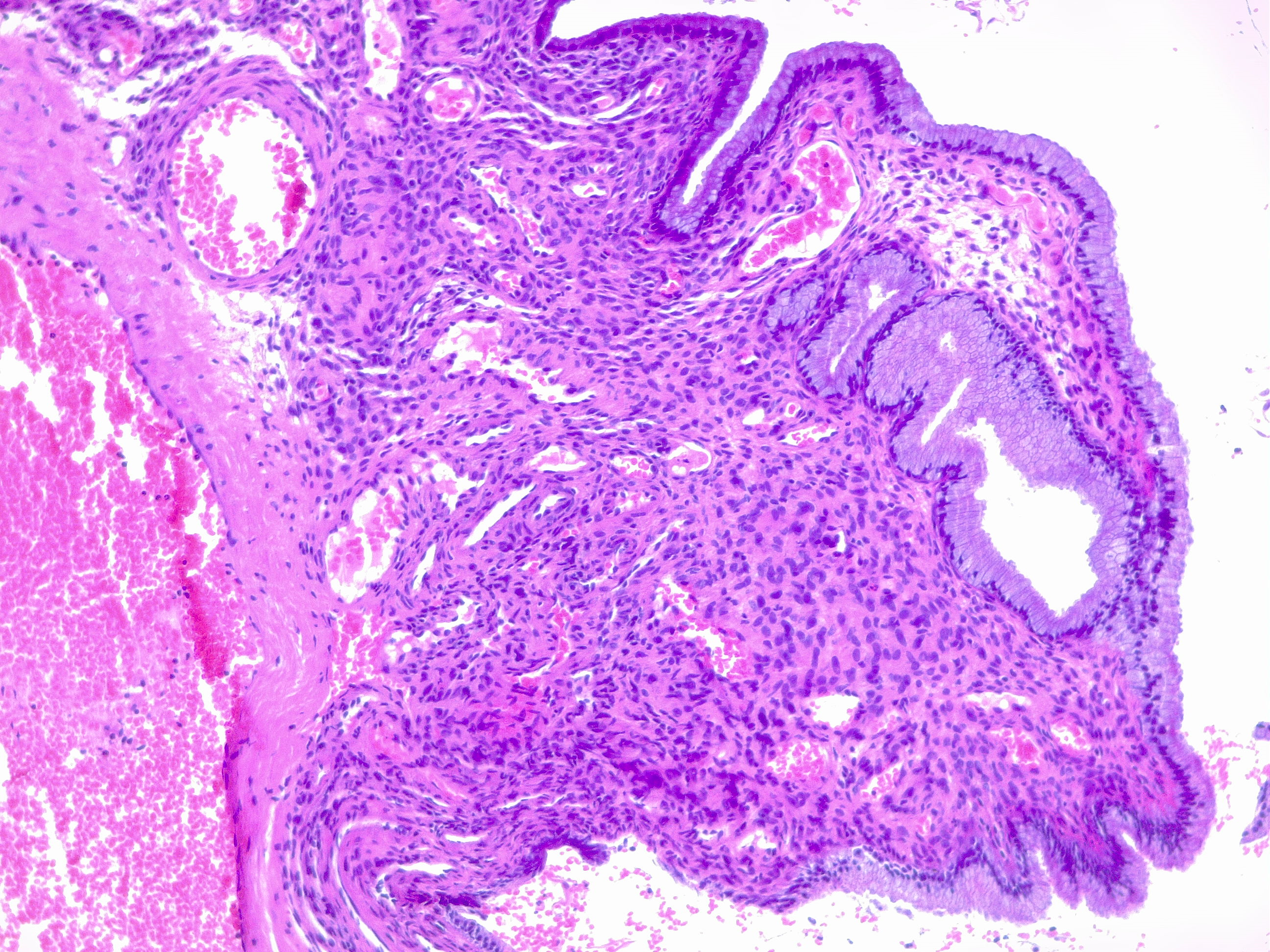 Endocervical polyp. Cervical polyps are common in reproductive years and can be found in cases of ectropion. In this image of the cervical mucosa typical endocervical glands with aedematous stroma with clear congestion.