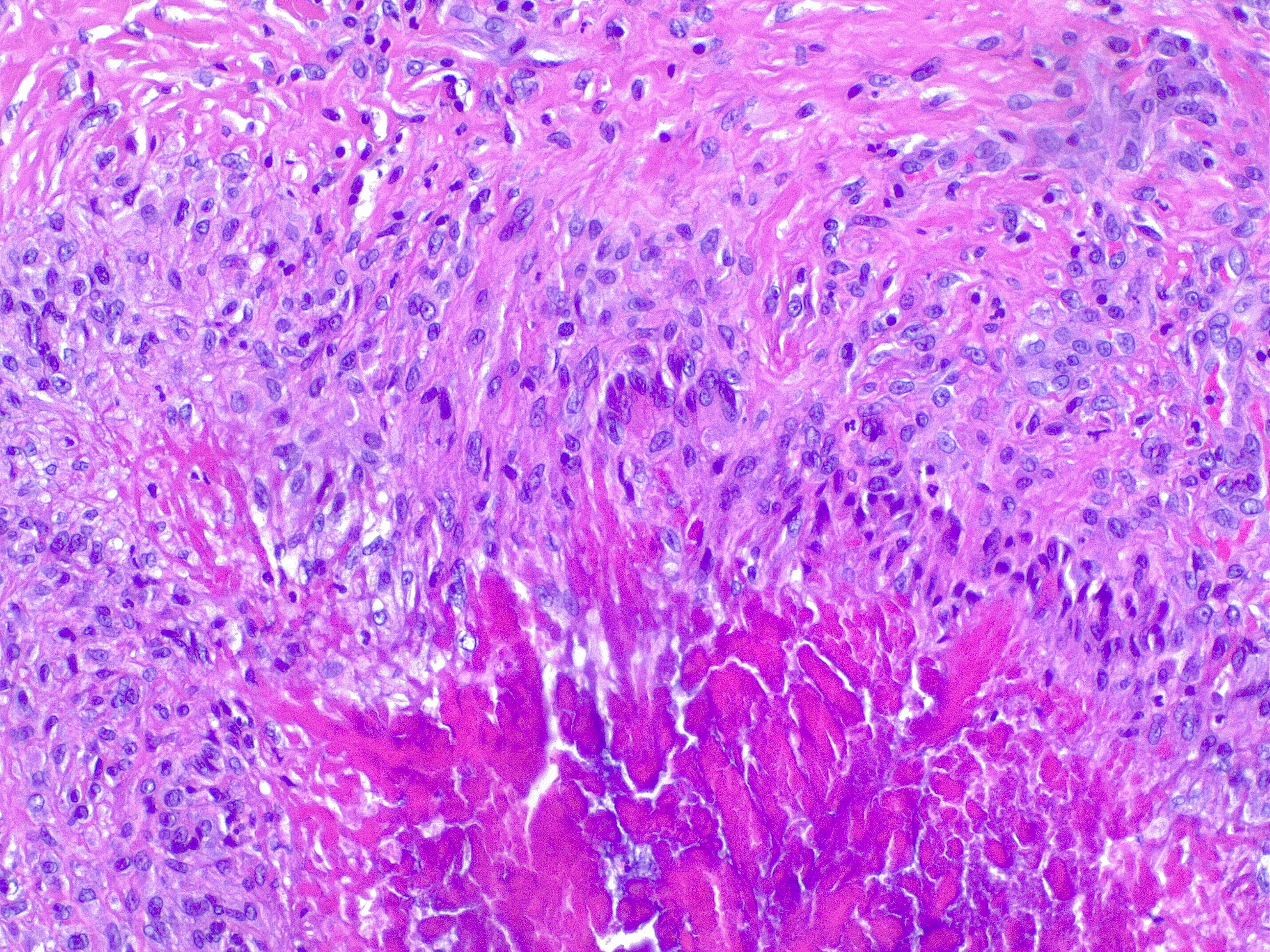 Granuloma annulare, H/E 20x. Palizading histiocytes and lymphocytes surround an area of necrobiotic collagen.