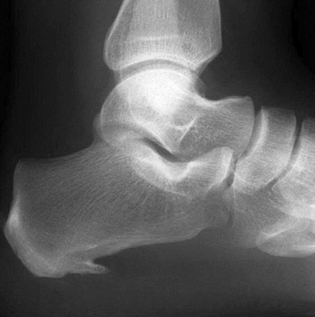 Lateral radiograph of the heel showing a large spur. This finding is present in approximately 50% of patients presenting with plantar fasciitis.