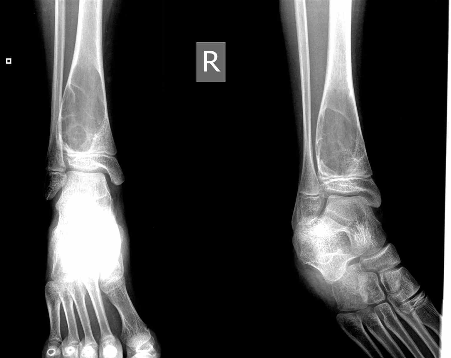 Radiograph Ankle ABC Aneurysmal Bone Cyst  Well Defined Expansile Lytic Lesion in Child with Internal Septations
