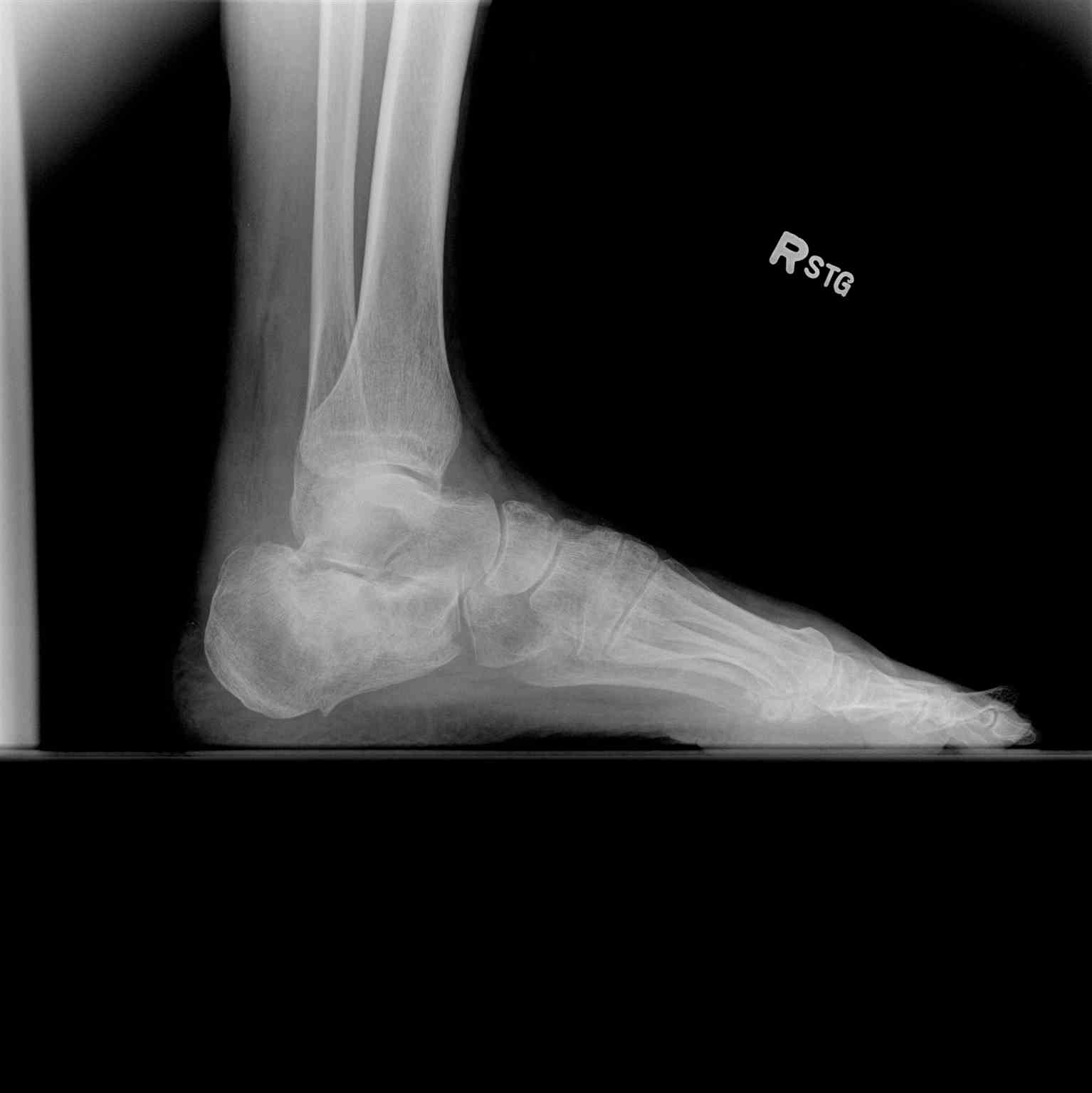 Ankle Radiograph Lateral Calcaneus Fracture