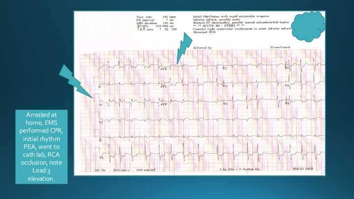 ECG of Acute MI with RCA occlusion.