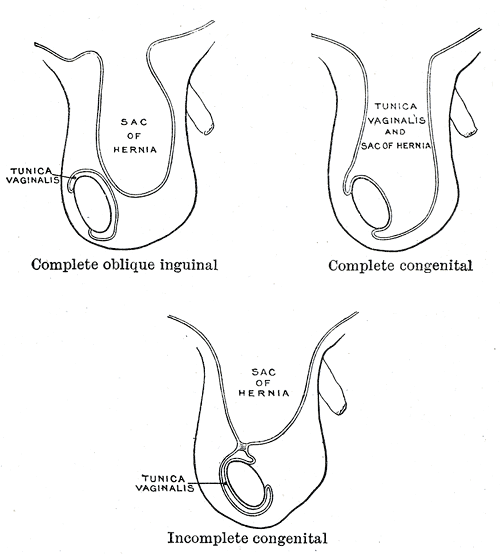 The Large Intestine, Varieties of oblique inguinal hernia, Complete oblique inguinal hernia, Sac of Hernia, Tunica vaginalis and Sac of Hernia, Complete congenita, Incomplete congenital