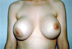 The photograph shows grade IV capsular contracture in the right breast of a 29-year-old woman seven years after sub glandular placement of 560cc silicone gel-filled breast implants