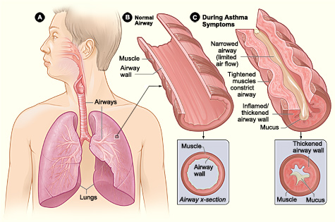 Figure A shows the location of the lungs and airways in the body. Figure B shows a cross-section of a normal airway. Figure C shows a cross-section of an airway during asthma symptoms