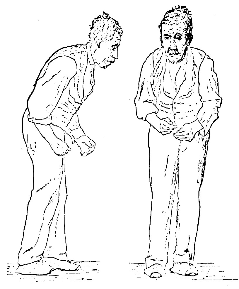 Sir William Richard Gowers, neurologist, researcher and artist, drew this illustration in 1886 as part of his documentation of Parkinson's Disease. The image appeared in his book, A Manual of Diseases of the Nervous System, still used today by medical professionals as a primary reference for this disease. Idiopathic or primary parkinsonism, hypokinetic rigid syndrome, paralysis agitans