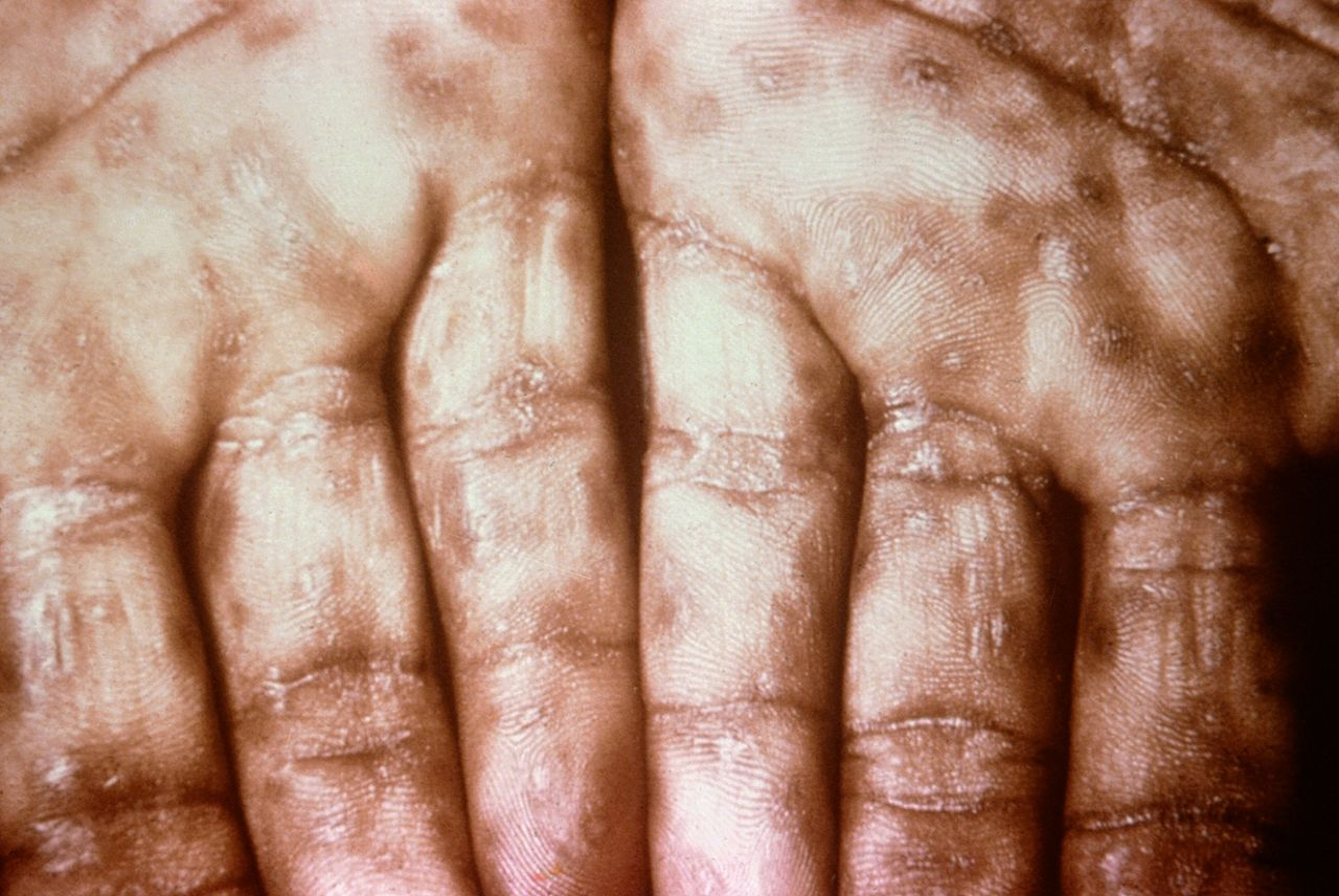 "This photograph shows a close-up view of keratotic lesions on the palms of this patient's hands due to a secondary syphilitic infection. Syphilis is a complex sexually transmitted disease (STD) caused by the bacterium Treponema pallidum. It has often been called ""the great imitator"" because so many of the signs and symptoms are indistinguishable from those of other diseases."