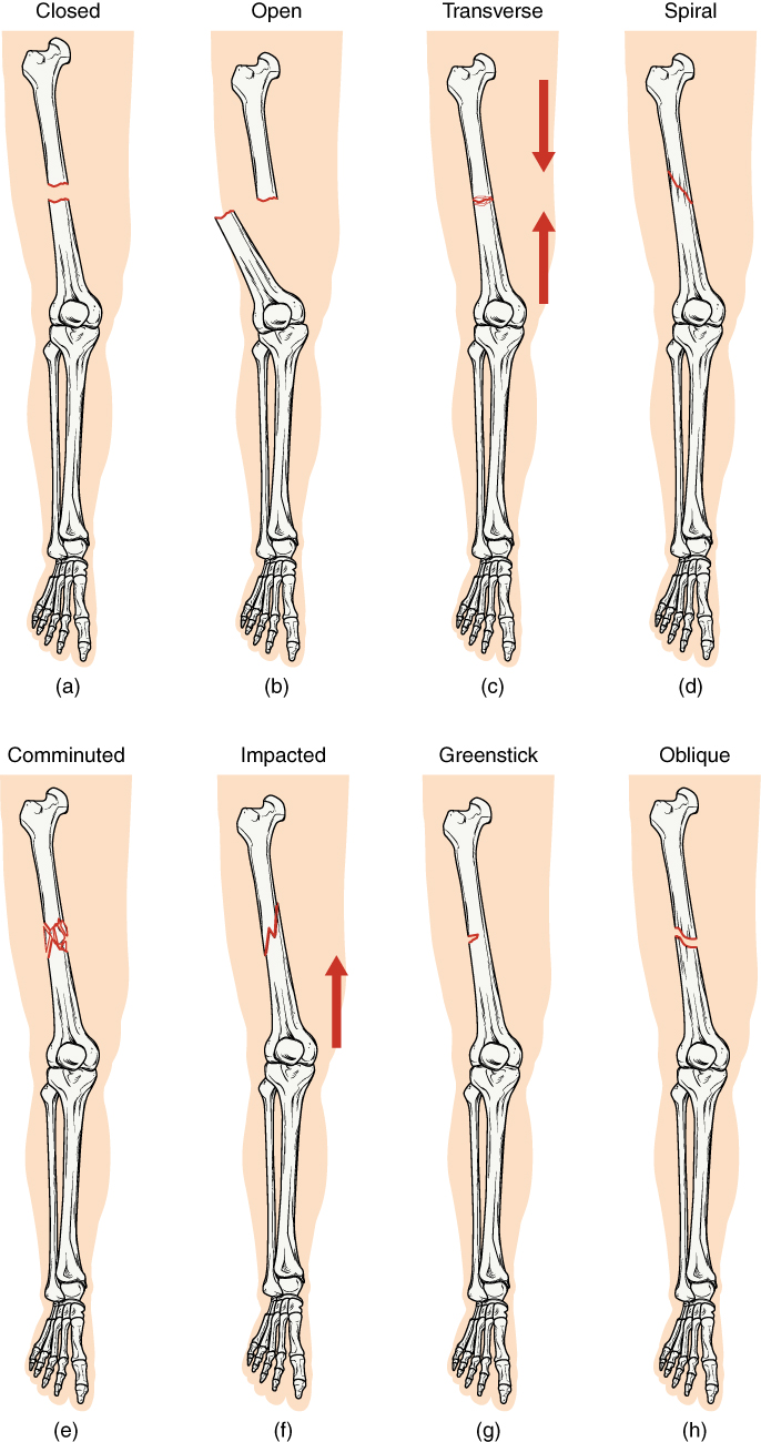 Bone, Different types of fractures, Closed Fracture, Open Fracture, Transverse Fracture, Spiral Fracture, Comminuted Fracture, Impacted Fracture, Greenstick Fracture, Oblique Fracture