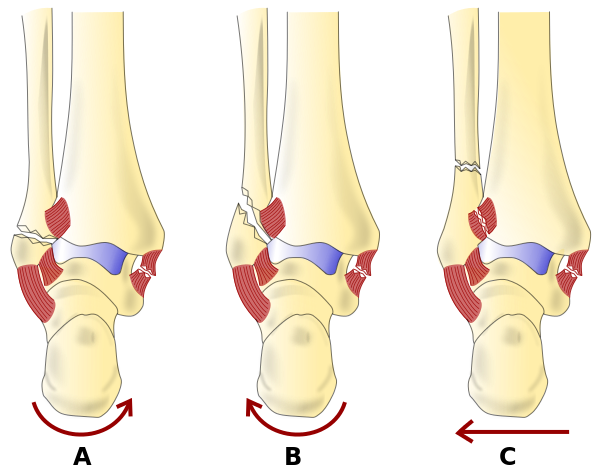Weber classification of Ankle Fractures, Fracture, Dislocation, Leg, Heel, Foot