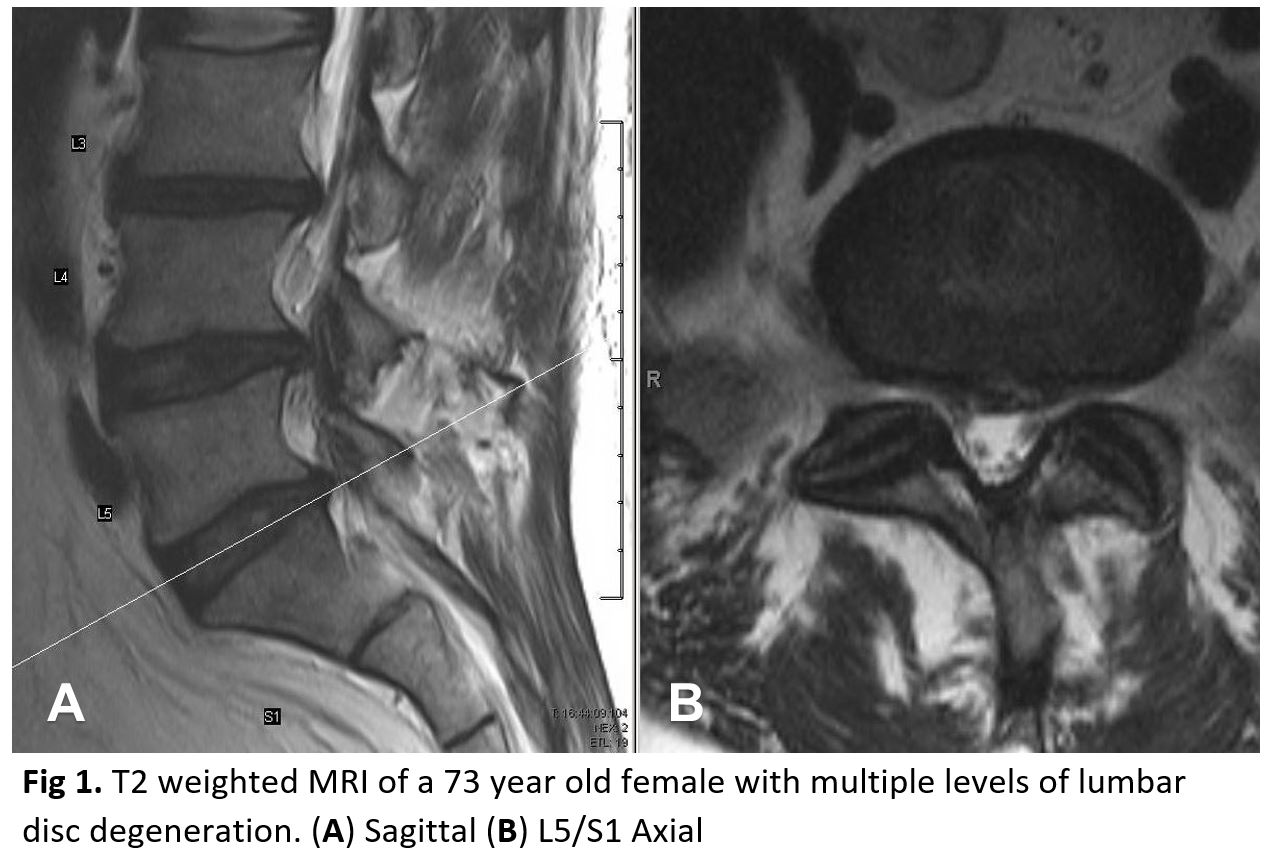 T2 weighted MRI of a 73 year old female with multiple levels of lumbar disc degeneration. (A) Sagittal (B) L5/S1 Axial