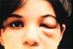 Romana's sign, a chagoma found over the eyelid, is a marker of acute Chagas disease infection