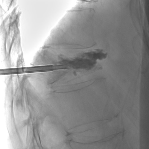 fluoroscopic image, cement injection during percutaneous kyphoplasty