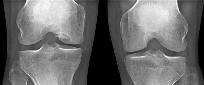 AP radiograph knees - medial femoral condyle Grade 2 osteochondritis dissecans