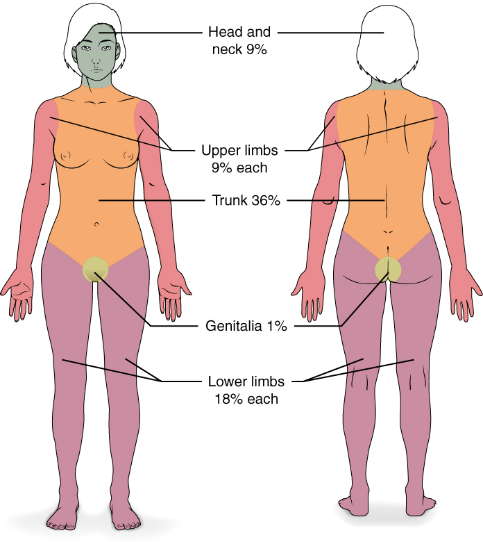 Wallace Rule of Nines for determining percent of burned body surface area.