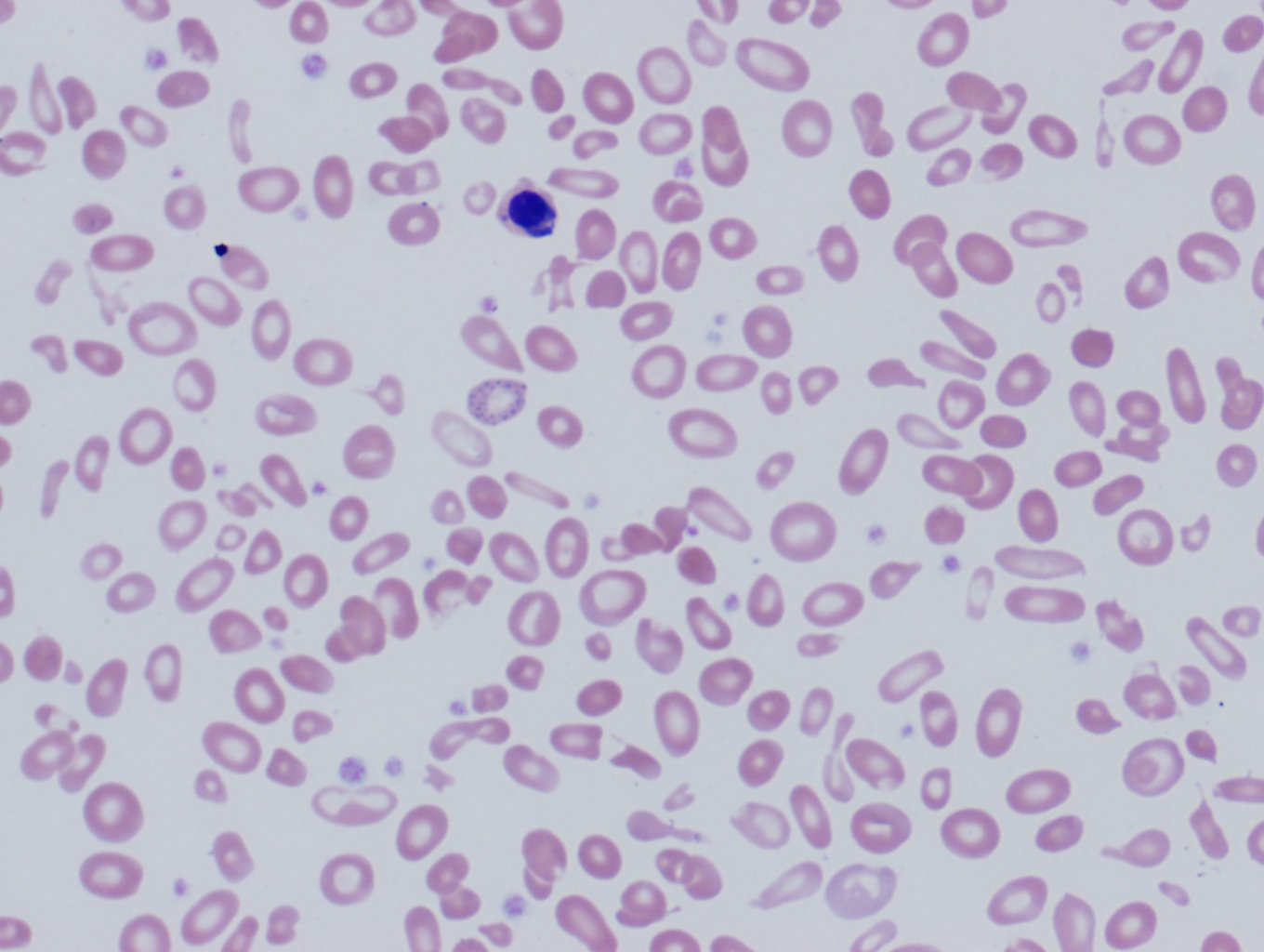 Image 1. Peripheral blood, beta-thalassemia (clinically intermedia) showing anisopoikilocytosis, a nucleated red cell, and basophilic stippling.