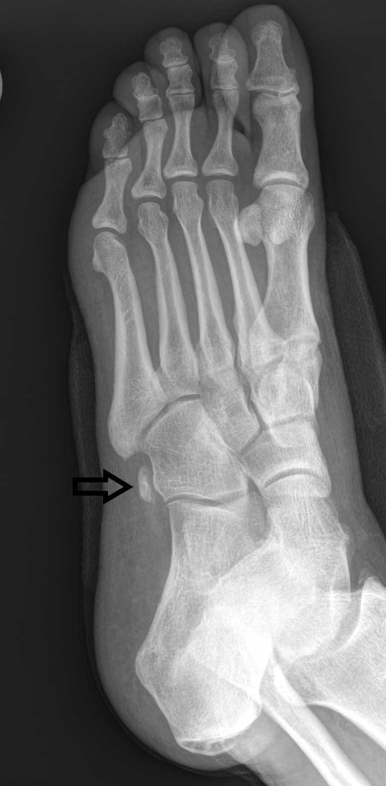 Prominent os peroneus on an oblique radiograph of the left foot. This finding may correlate to osseous enlargement as a chronic stress-related change versus a congenital prominent appearance.