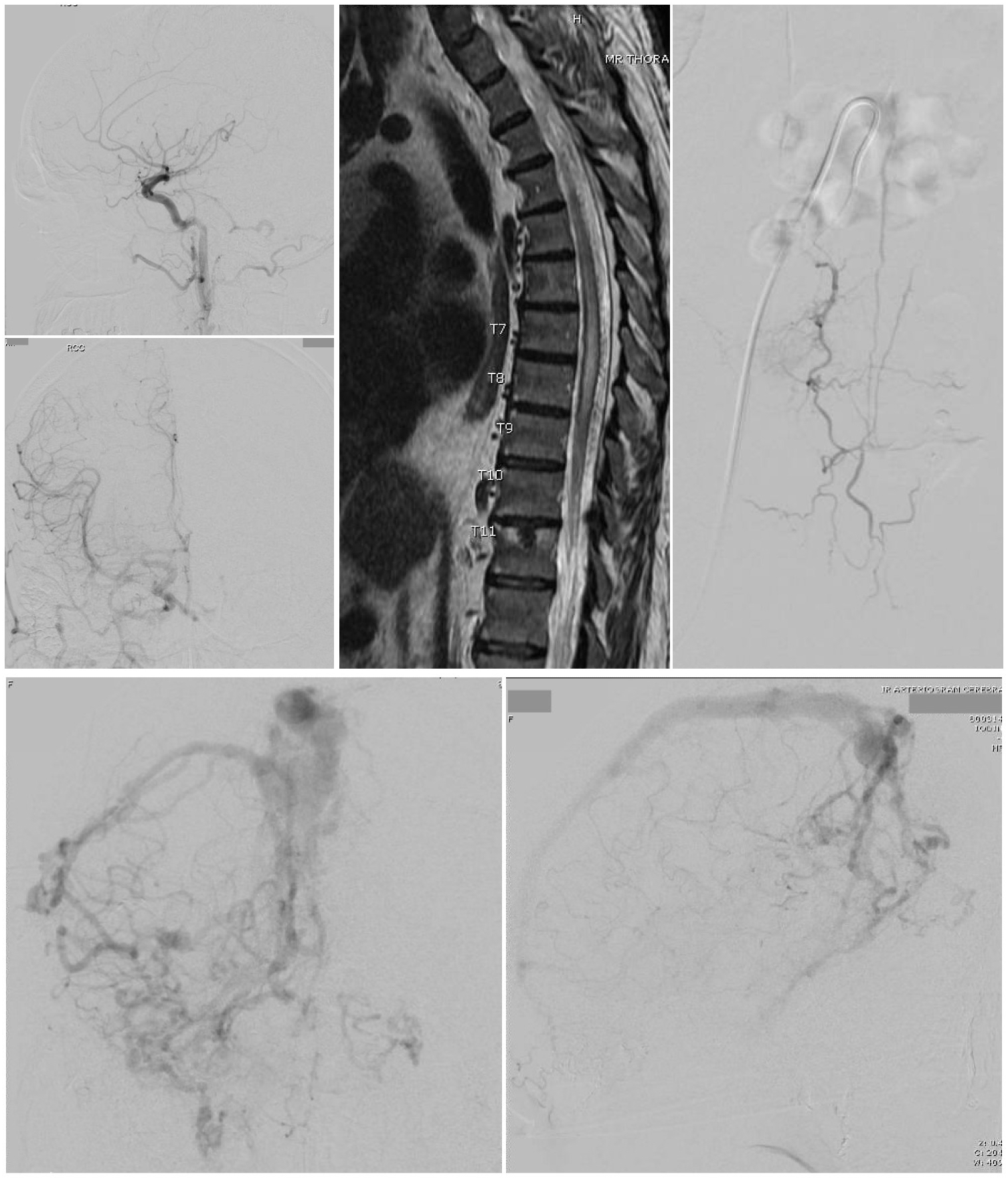 Top Left 2 images - A Cognard type 3 dural arteriovenous fistula is seen on cerebral catheter angiography with arterial phase right common carotid injections, lateral view (top) and anteroposterior view (bottom). 