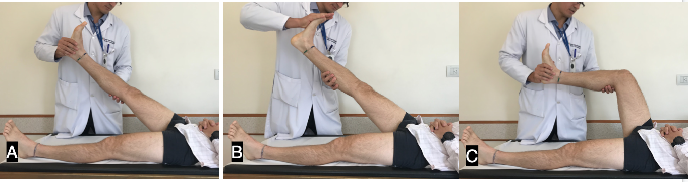 Figure 1.A) Straight leg raise test. B) Bragaad's Test to increase the test sensitivity. C) When flexing the knee the patient usually experience pain relief.