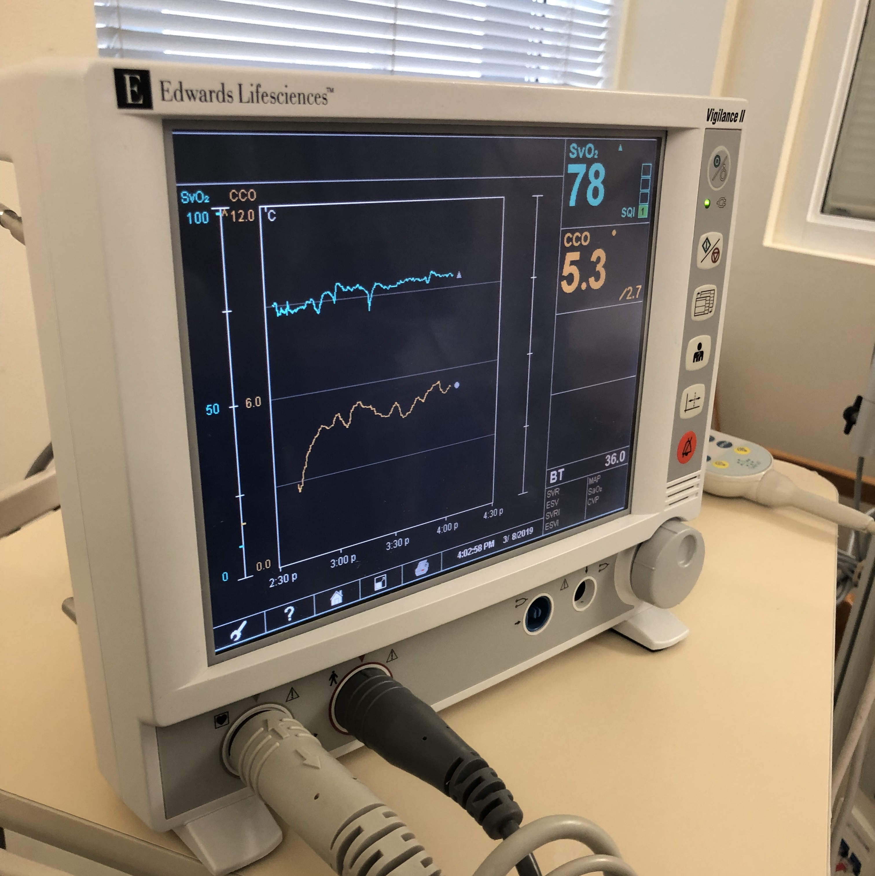 Monitor showing mixed venous oxygen saturation value (SvO2) in blue and cardiac output (CO) value in orange