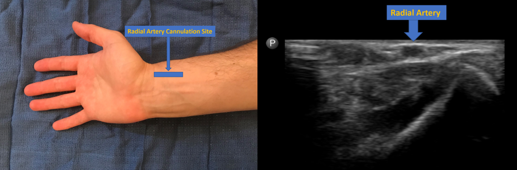 Radial artery cannulation site and image of radial artery on ultrasound at this level.